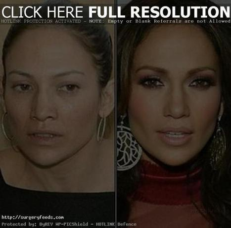 Jennifer Lopez Plastic Surgery Before and After Photos - 2014 | Plastic Surgery Before and After Photos | Scoop.it