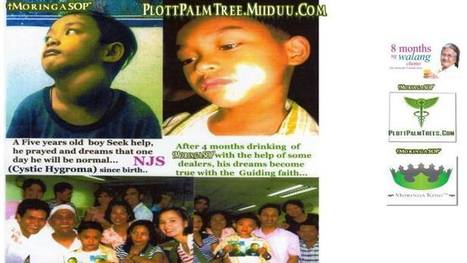 CURED ANOTHER ONE: 5 YEAR OLD CHILD OF CYSTIC HYGROMA - The Moringa Queen | MoringaSOP? What Is that | Scoop.it