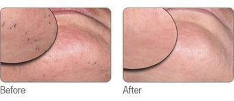 Laser Hair Removal Technologies- Basics And Benefits | Laser Hair Removal | Scoop.it