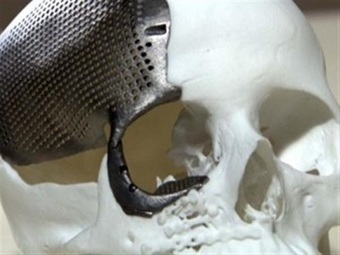 Medical first in Brazil: 3D printed titanium skull successfully implanted in 23-year-old woman | 3D_Materials journal | Scoop.it
