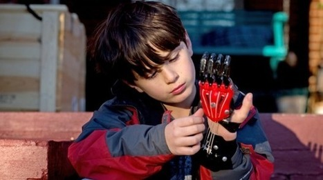 Disabled seize life with hand of a superhero | Cool Future Technologies | Scoop.it