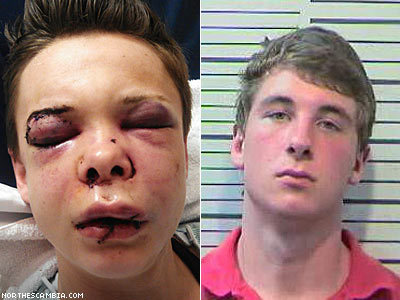 Young Lesbian in Brutal Attack on Thanksgiving Day   LGBT Times   Scoop.it