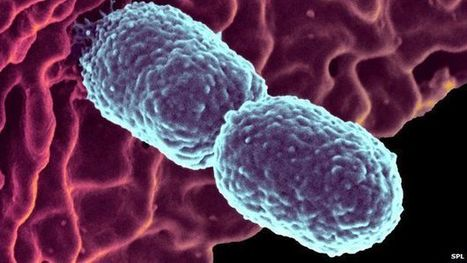 Call to punish GPs over antibiotics - BBC News | Media Cultures: Microbiology in the news | Scoop.it