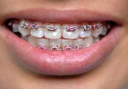 Asian teens shell out money for fake fashion braces; Metal mouth is style trend in Thailand, Indonesia and Malaysia | It's Show Prep for Radio | Scoop.it