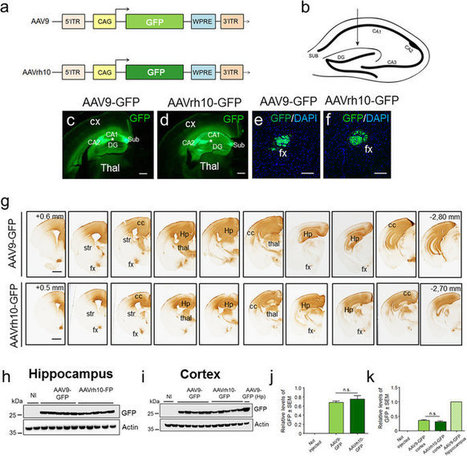 Ultramicroscopy as a novel tool to unravel the tropism of AAV gene therapy vectors in the brain | Immunology and Biotherapies | Scoop.it