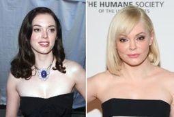 FOTOS: Cómo lucían los famosos antes de las cirugías | musica | Scoop.it