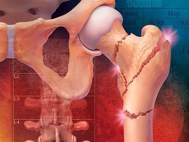 Bone Drugs Linked to Rare Thigh Fractures | The Doctors | Scoop.it
