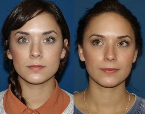 Enhance Your Beauty with Rhinoplasty in Dubai ~ World Information Online - Blogs on Latest Trends & Different Topics | Health | Scoop.it