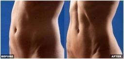 Vaser hi-def Liposculpture | Advanced Body Contouring - ScupltHD | Liposuction | Scoop.it