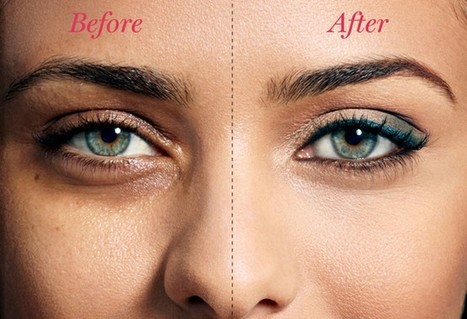 Want To Know About Medical Cause For Bags Under Eyes   Darkcircles   Scoop.it