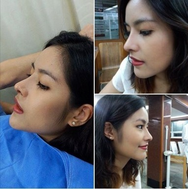 Bangkok Aesthetic Surgery Center: The Best Nose Augmentation In Thailand | Best Cosmetic Surgery Clinic In Thailand | Scoop.it