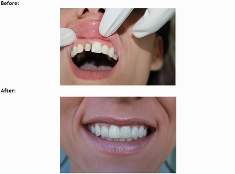 Bad Breath Treatments Encino - Easyfamilydental.com | Easy Family Dental | Scoop.it