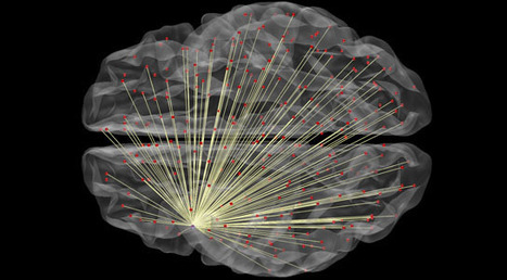 Images of Brain Connectivity Help Predict Intelligence | Wonderful Science | Scoop.it