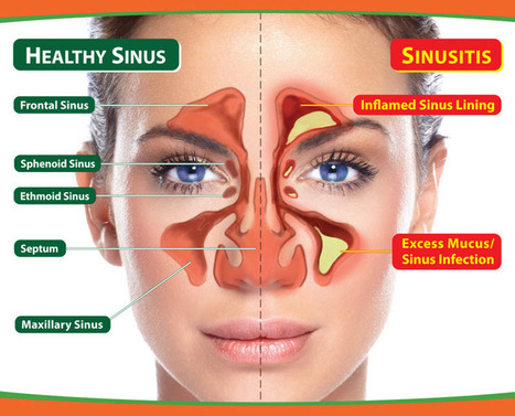 Helping Your Child Through Sinusitis | Allergy Treatment | Scoop.it