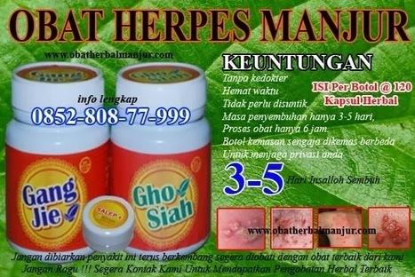 Obat Herpes Salep ~ Obat Herbal Manjur | pengobatan penyakit menular sexsual | Scoop.it