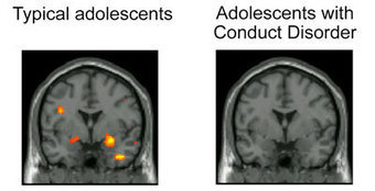 Brain-activity.jpg (400x205 pixels) | Treating Conduct Disorder with Adventure Therapy | Scoop.it