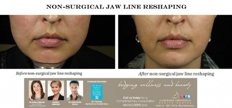 Non-Surgical Jaw Augmentation | Non- Surgical Jawline Reshaping | Ambleside Dermedics | Ambleside Dermedics | Scoop.it