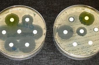 Scoperta una molecola contro i batteri resistenti agli antibiotici - Gaianews.it | AMR - Antibiotico resistenza e alimenti di origine animale | Scoop.it