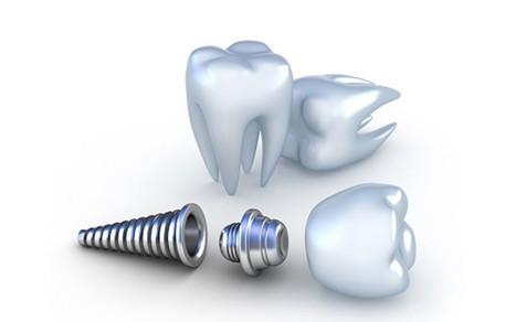 Mini Dental Implants vs. Standard Dental Implants | Gototrafs Links | Scoop.it