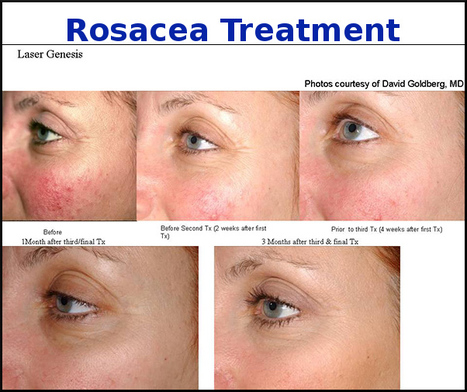 Really Effective Rosacea Skincare‎ Laser Treatment in Drogheda | Laser & Medi Treatments | Scoop.it