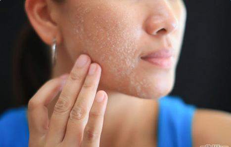 Bí quyết làm se khít lỗ chân lông trên mặt cực hiệu quả | Cách làm trắng da tự nhiên | Scoop.it