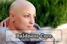 Baldness Cure for Women | Baldness Cure | Scoop.it