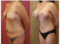 Tummy Tuck in Los Angeles | Dr. Sean Younai, FACS | tummy tuck | Scoop.it