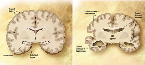 Identifican once genes relacionados con el Alzheimer en un estudio a gran escala | Apasionadas por la salud y lo natural | Scoop.it