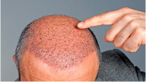 The Fundamentals of Male's Hair Transplants   Royal Cosmetic Surgery   Scoop.it
