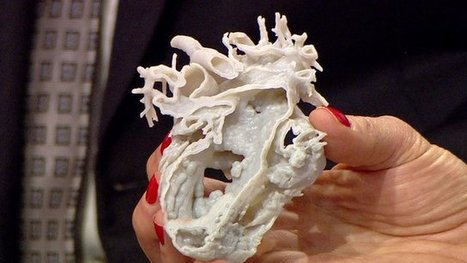 3D printed heart saves girl's life | health | Scoop.it