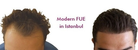 Results | FUE Hair Transplant Turkey Istanbul | Scoop.it