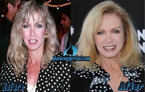 Donna Mills Plastic Surgery Before and After Photos — Plastic Surgery Facts | Celebrity Plastic Surgery News | Scoop.it