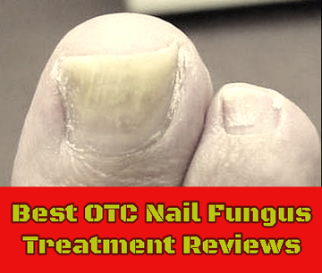Best OTC Nail Fungus Treatment Reviews | Health Wazzup | Scoop.it