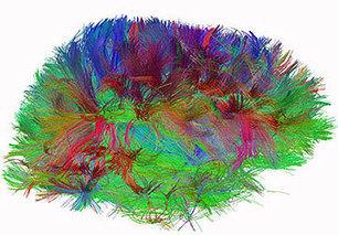 ¿Seremos alguna vez capaces de recrear el cerebro humano? No, por mucho tiempo | Microsiervos (Ciencia) | Educacion, ecologia y TIC | Scoop.it
