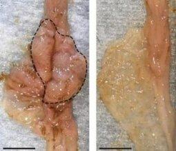 Gut microbes spur development of bowel cancer | Bio Sciences | Scoop.it
