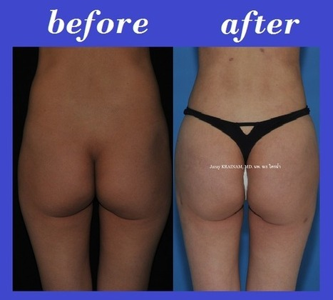 Butt Fat Injection Photos Thailand | Bangkok Aesthetic Surgery Center | The Best Plastic Surgery Clinic In Thailand | Scoop.it