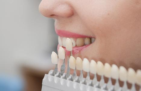 Esthetic Dentistry, Dental Bridges – Dentures & Wisdom Teeth, Teeth Whitening - Main Street Dental Team | Dental Health | Scoop.it