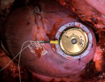 A battery-free pacemaker powered by the beating heart itself | Salud Publica | Scoop.it