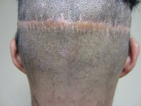 Fixing Hair Transplantation Scars | A Guide to Hair Transplant | Scoop.it