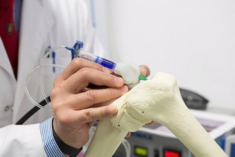 Surgical 3D printing BioPen writes in bone, nerve and muscle | Machinimania | Scoop.it