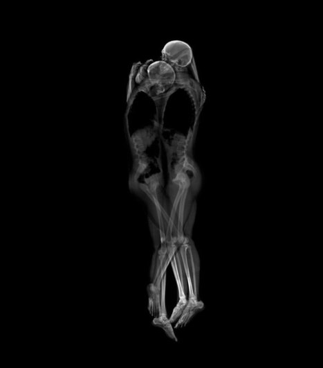 X-Ray Portraits of Couples by Ayako Kanda and Mayuka Hayashi (4 pictures) | art et machines | Scoop.it
