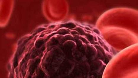 Sıcak Kemoterapi Kimlere Uygulanır? | Medical Park TV | www.medicalparktv.com | Scoop.it