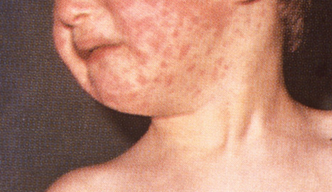 First Measles Death in US Since 2003 | Virology News | Scoop.it