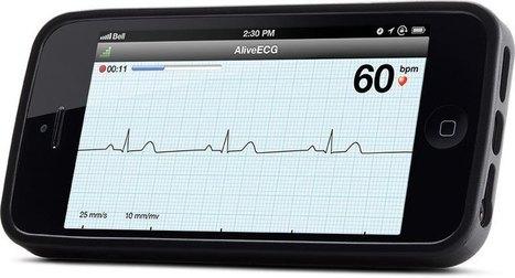 El teléfono móvil en cardiología: el ejemplo de AliveCor | Salud Conectada | Scoop.it