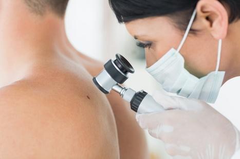 Une nouvelle molécule contre le cancer de la peau | Santé et Soins | Scoop.it