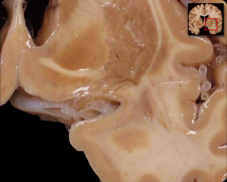 detail amygdala no labels | CognitiveScience | Scoop.it