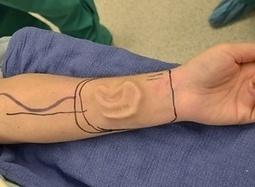 Woman's Ear Regrown In Her Forearm | Singularity Hub | Longevity science | Scoop.it