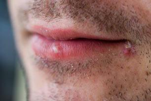Powerful Proven Treatments For Cold Sore | onlineremedy | Scoop.it