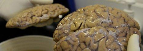 Des nanoparticules probablement issues de la pollutionretrouvées dans le cerveau | Toxique, soyons vigilant ! | Scoop.it