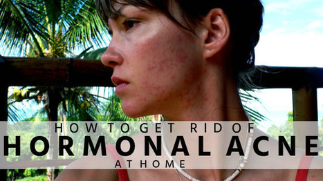 How to Get Rid of Hormonal Acne at Home | Beauty Tips | Scoop.it